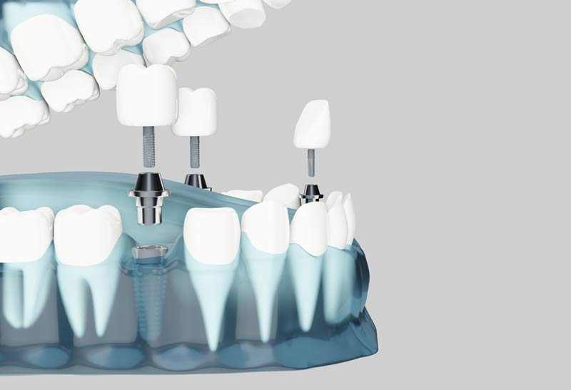 Zahnprothese mit Vollnarkose